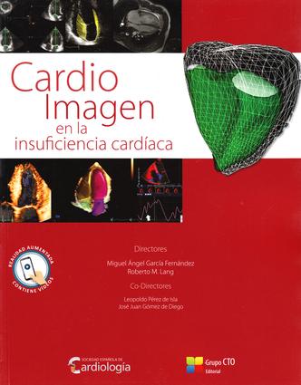 Cardio Imagen en la Insuficiencia Cardiaca