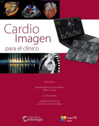 Cardio Imagen Para El Clinico