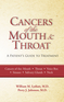 Cancers of the Mouth and Throat